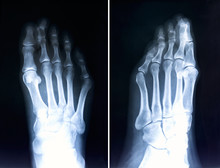 X-ray Of Foot Fingers.Radiography With Deformed Toes.Hallux Valg