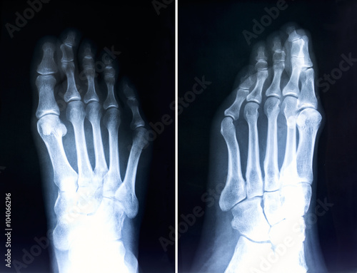 Obraz na plátne X-ray of foot fingers.Radiography with deformed toes.Hallux valg