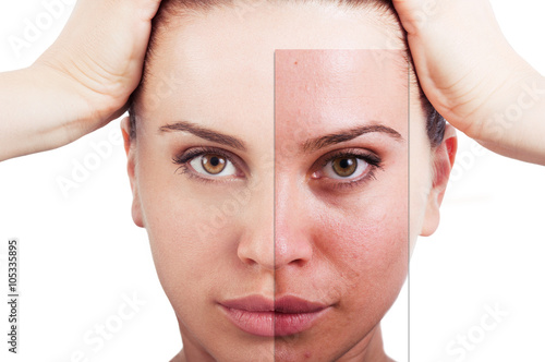 Fotografie, Obraz  Flawless woman portrait before and after facial correction