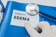 Edema - lymphatic diagnosis on blue folder with stethoscope.