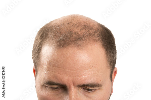 Valokuva  Baldness Alopecia man hair loss haircare