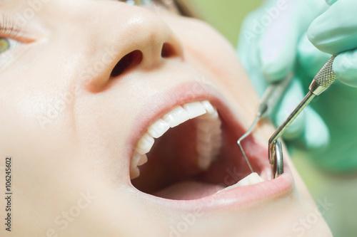 Valokuva  Woman at dentist teeth close up