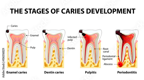 Fototapeta stages of caries development