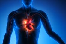 Herzinfarkt-Gefahr
