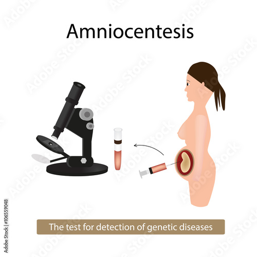 Photo Amniocentesis