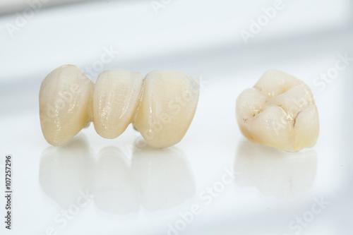Metal free ceramic dental crowns Tablou Canvas