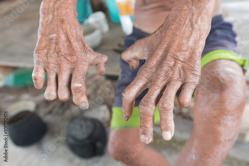 Fotografie, Obraz Hansen's disease,closeup hands of old man suffering from leprosy