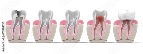 Foto 3d renderings of endodontics - root canal procedure