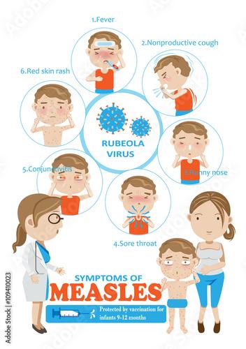 Fotografia  measles/Symptoms of measles Info Graphics.vector illustration