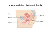 Anatomical Sites Of Obstetric Fistula Diagram