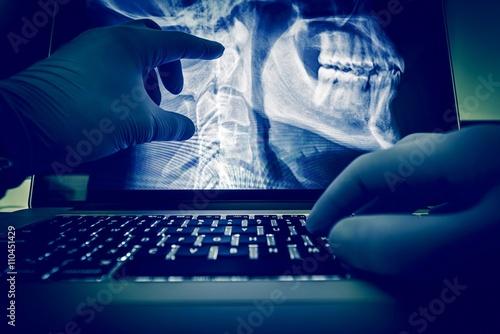 Fotografie, Obraz  Doctor Examining X Ray