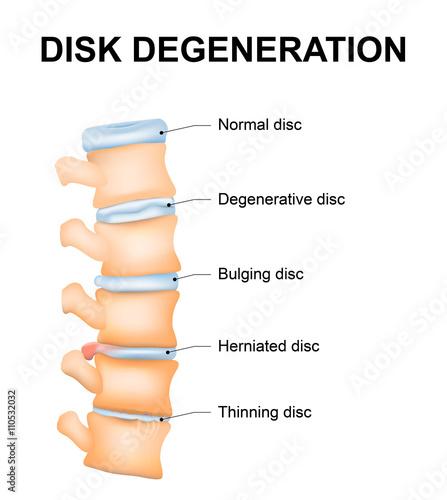 Fotografie, Tablou Disc degeneration