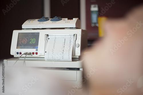 Fotografija  Fetal heartbeat monitor, cardiotocography
