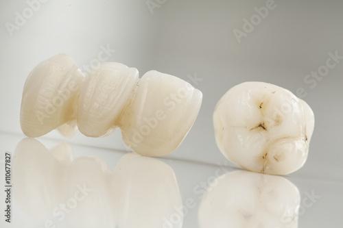 Fényképezés  Ceramic bridge close up view