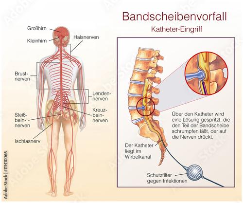 Bandscheibenvorfall. Katheter-Eingriff – kaufen Sie diese ...