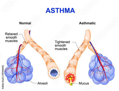 Vászonkép inflamation of the bronchus causing asthma