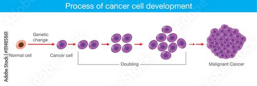 Obraz na plátně Process of cancer cell development. Medical illustration.
