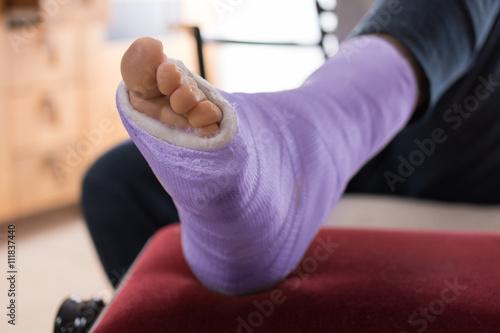 Fotografía  Purple blue Fiberglass / Plaster leg cast