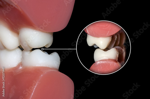 dental occlusion molars teeth close up Canvas-taulu