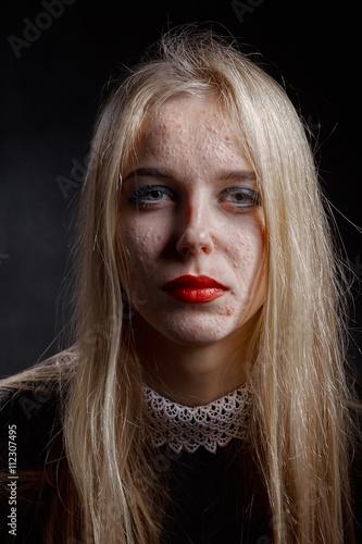 pimply skin girl