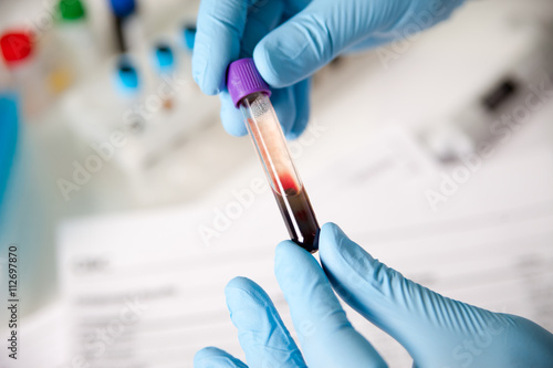 Fotografía  Tubes of blood and blood serum in the hands of the scientist or laboratory for a