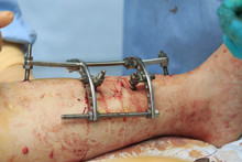 Fixation Apparatus (Ilizarov Apparatus) Installed To The Shin In The End Of The Surgery