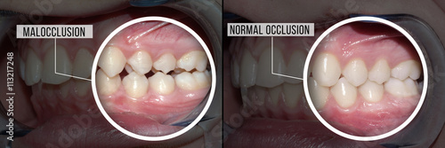 Fotografia  dental treatment malocclusion: before and after
