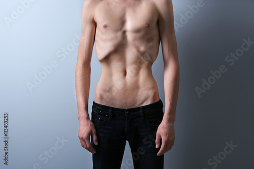 Skinny young man with anorexia on grey background Canvas Print