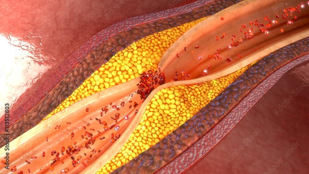 Fototapety, obrazy: Coronary artery plaque