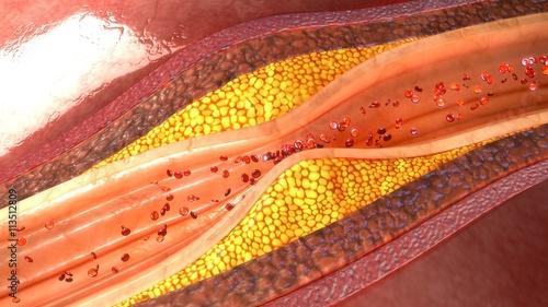 Photo Coronary artery plaque