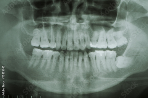 Dental X-Ray. A panoramic x-ray of a mouth, with intact wisdom t ...