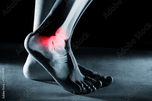 Human foot ankle and leg in x-ray Wallpaper Mural