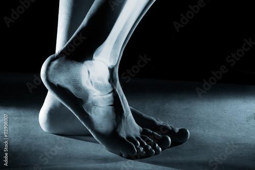Fotografie, Obraz  Lidská noha kotník a noha v x-ray