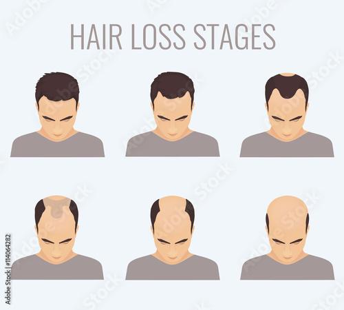 Fotografia, Obraz  Male hair loss stages set
