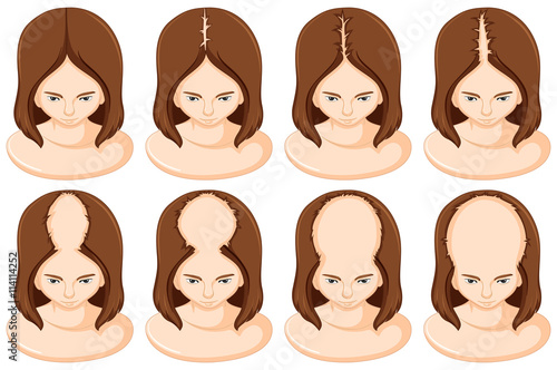 Stages of hair loss in woman Canvas Print