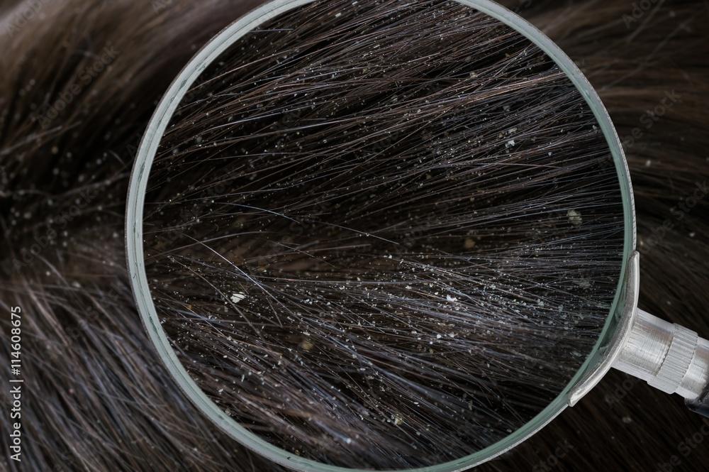 Fototapeta Examiming white dandruff flakes in hair with magnifying glass.