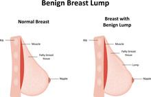 Benign Breast Lump