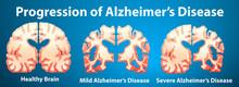 Progression Of Alzheimer's Disease On Blue Background