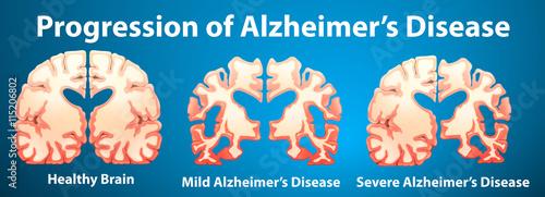 Progression of Alzheimer's disease on blue background Canvas Print