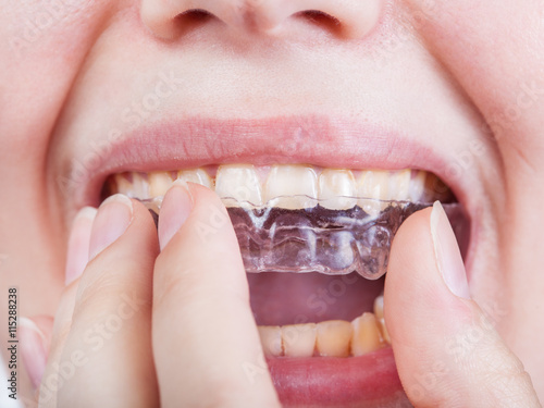 Valokuva  young woman puts clear aligner close up