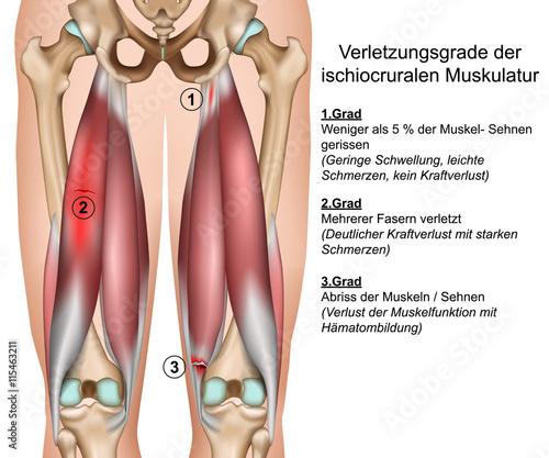 OberschenkelmuskelriГџ