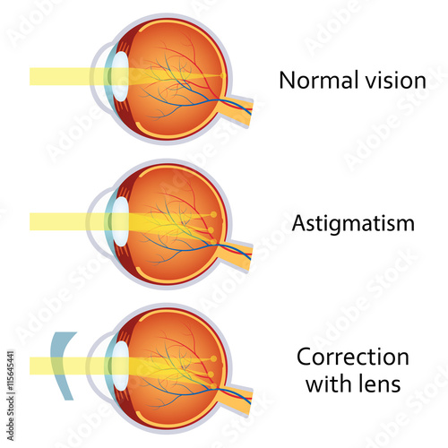 Photo Astigmatism corrected by a cylindrical lens.