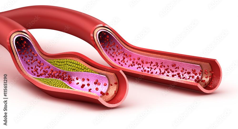 Fototapety, obrazy: Blood vessel : normal and cholesterol damaged vessel . 3D render