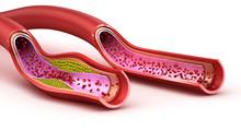 Blood Vessel : Normal And Cholesterol Damaged Vessel . 3D Render