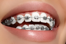 Beautiful Macro Shot Of White Teeth With Braces. Dental Care Photo. Beauty Woman Smile With Ortodontic Accessories. Orthodontics Treatment. Closeup Of Healthy Female Mouth