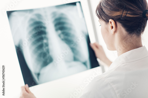 Fotografie, Obraz  Doctor examining a patient's x-ray