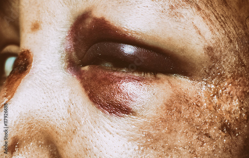 Fényképezés  Domestic violence - monocle
