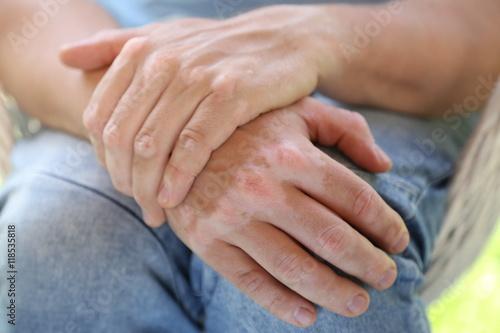 Fotografia, Obraz  Choroby skóry. Bielactwo. Albinizm