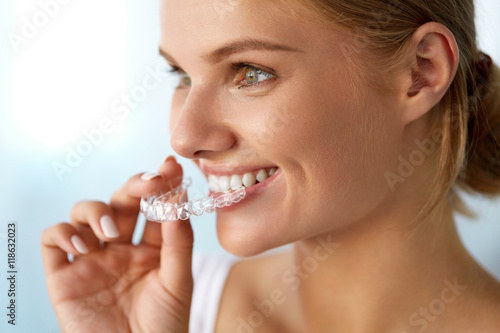 Fotografia  Smiling Woman With Beautiful Smile Using Invisible Teeth Trainer