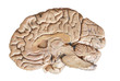 canvas print picture - Real human half brain anatomy isolated on white background